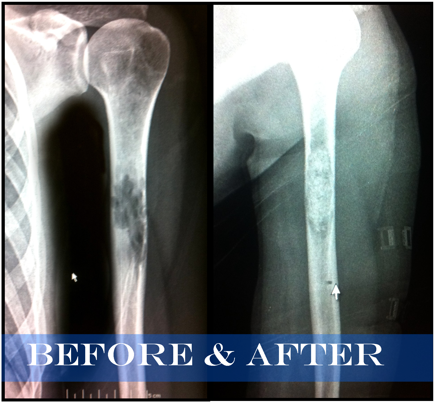 Before_After_xray